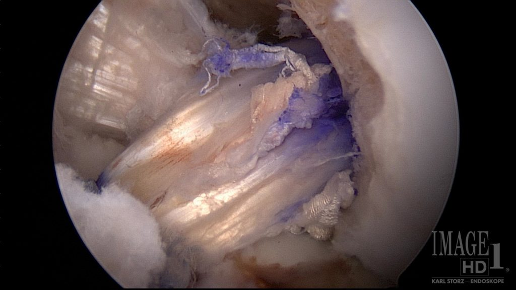 Hamstring tendon graft from ACL surgery