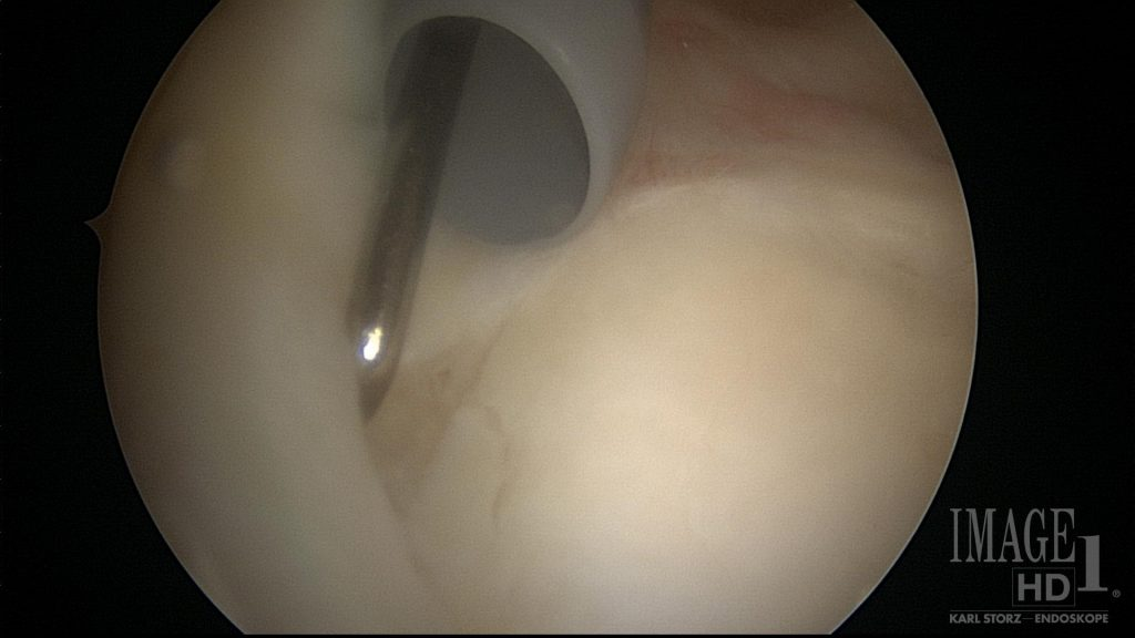 SLAP tear image seen during surgery