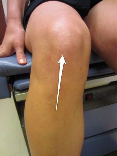 Location of knee pain with patellar tendonitis