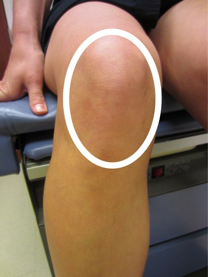 Patellofemoral pain