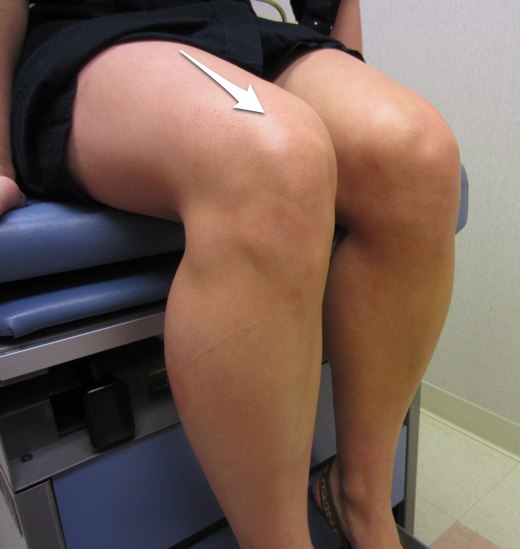 Location of a quadriceps tendon rupture