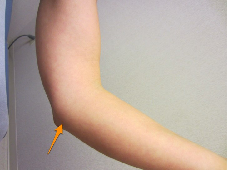 Location of ulnar nerve compression