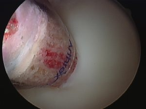 Inserting bone and cartilage