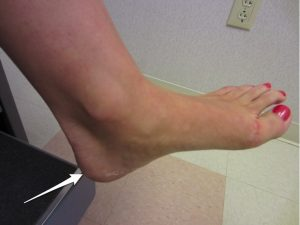 Location of foot and heel pain with Sever's disease