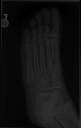 Xray of a Jones fracture