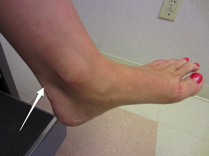 Location of Achilles tendonitis pain
