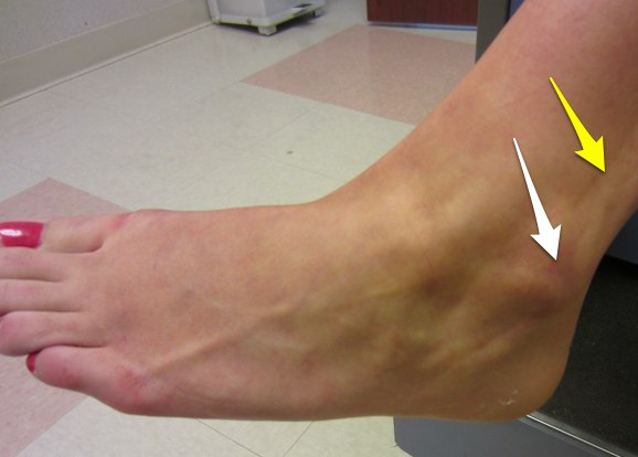 Lateral malleolus ankle fracture