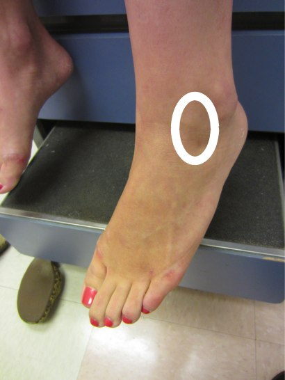 Location of lateral ankle impingement pain
