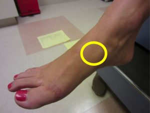 Location of foot pain with a navicular stress fracture