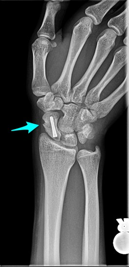 X-ray of a scaphoid fracture after surgery