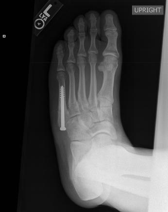 X-ray of Jones fracture after surgery