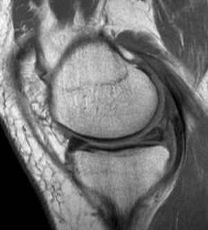 MRI image of a degenerative medial meniscus tear