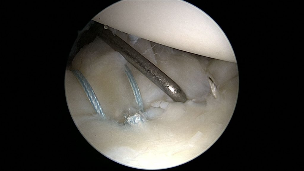 Repair of a SLAP tear