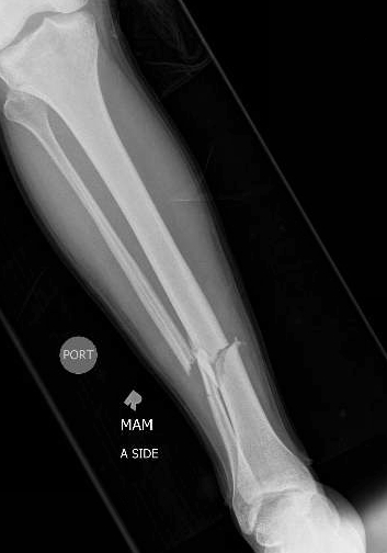 Xray showing tibia and fibula fracture