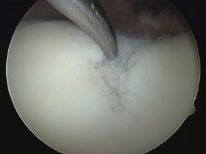 Microfracture surgery to treat an area of cartilage injury