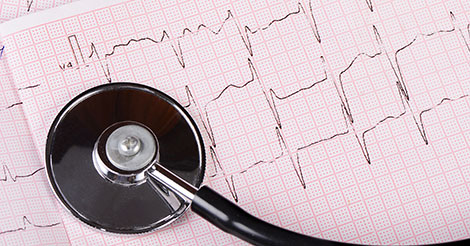 ECG or EKG to screen to prevent sudden cardiac arrest