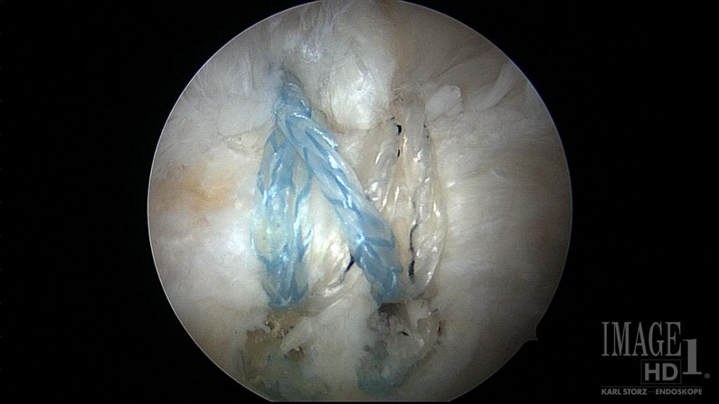 Surgical image of a rotator cuff repair