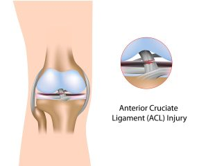 ACL tears are one of the common knee injuries in young athletes