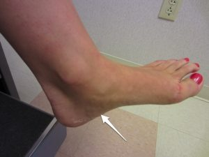 Location of pain from plantar fasciitis