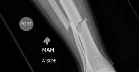 X-ray showing a tibia fracture