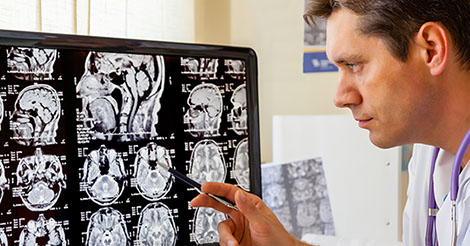 Doctor studies MRI of the brain for a concussion