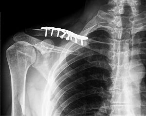 Clavicle fracture x-ray after surgery