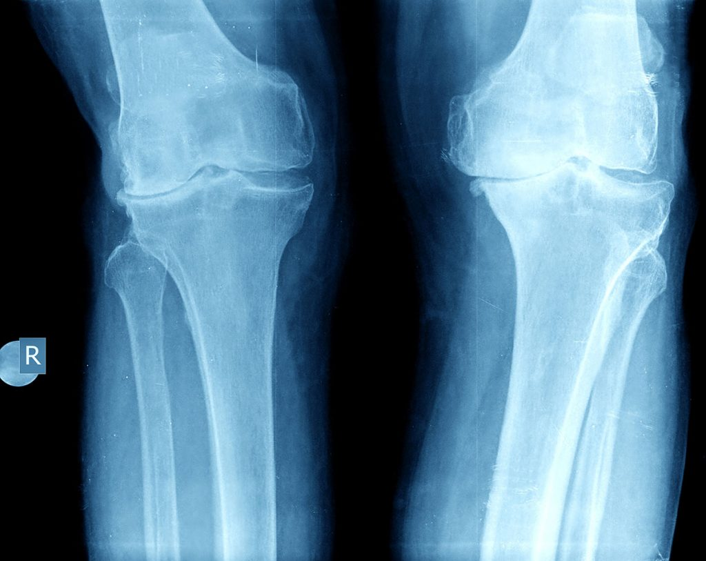 Xray showing knee arthritis