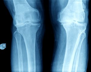 X-rays showing knee arthritis after an ACL injury
