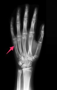 Location of boxer's fracture, a common hand injury