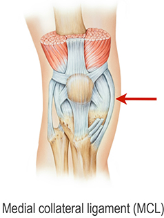 Location of an MCL tear of the knee