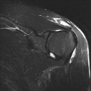 MRI looking for rotator cuff tear