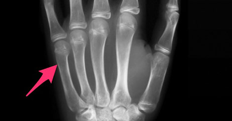 Location of a boxer's fracture