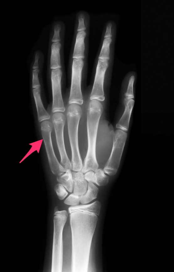 Location of a common metacarpal fracture